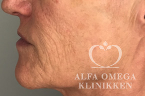 Før soft lift med filler