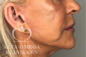 Efter fjernelse af slap hud i ansigtet