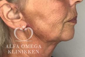 Efter ansigtsløft hos Alfa Omega Klinikken