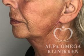 Efter ansigtsløft og fjernelse af løs hud i ansigtet