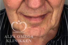 Før hollywood lift og fjernelse af løs hud i ansigtet