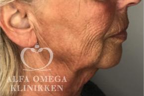 Før ansigtsløft hos Alfa Omega Klinikken