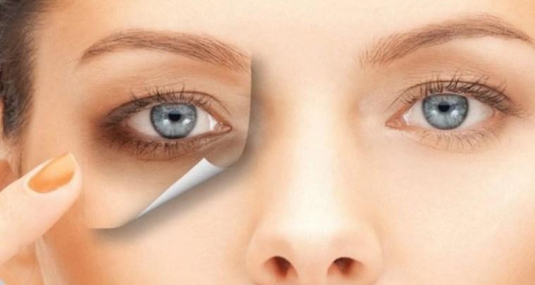 9aa3be1dd 5 خطوات طبيعية لعلاج هالات العين السوداء – جريدة الحقيقة الإلكترونية