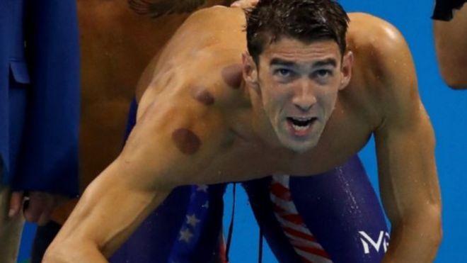 جدل بشأن آثار حجامة في الأولمبياد