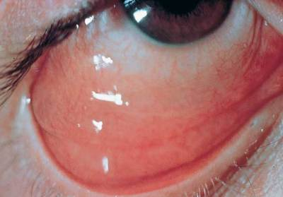 BacterialConjunctivitis