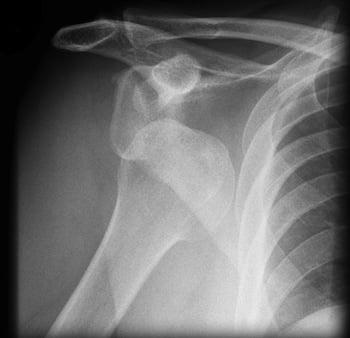 Trick of the Trade: Got a shoulder dislocation? Park it