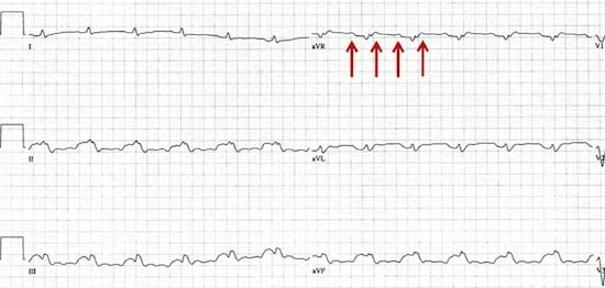 Trick of the Trade: Speed up ECG paper rate to