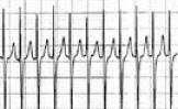 Tachycardia_ECGtracing