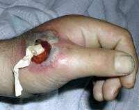 Abscess Packing Hand
