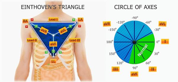 ECG - E tri and Cardiac Axis