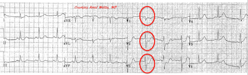 Posterior Myocardial Infarction: How Accurate is the Flipped