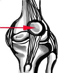 patella-dislocation knee injuries