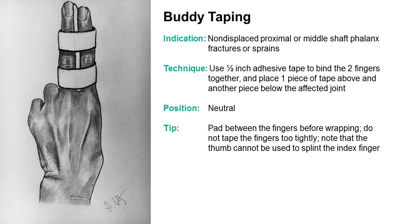 Splinter Series Common Ed Splint Techniques Splint