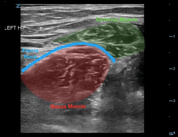 Fascia iliaca anatomy ultrasound