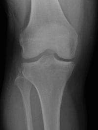 segond fracture xray