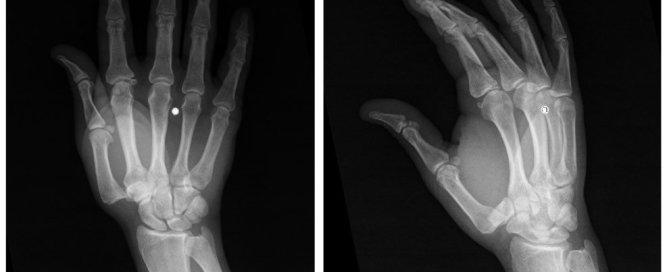 trapeziometacarpal dislocation xray