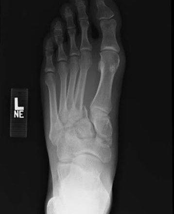 foot x-ray Lisfranc