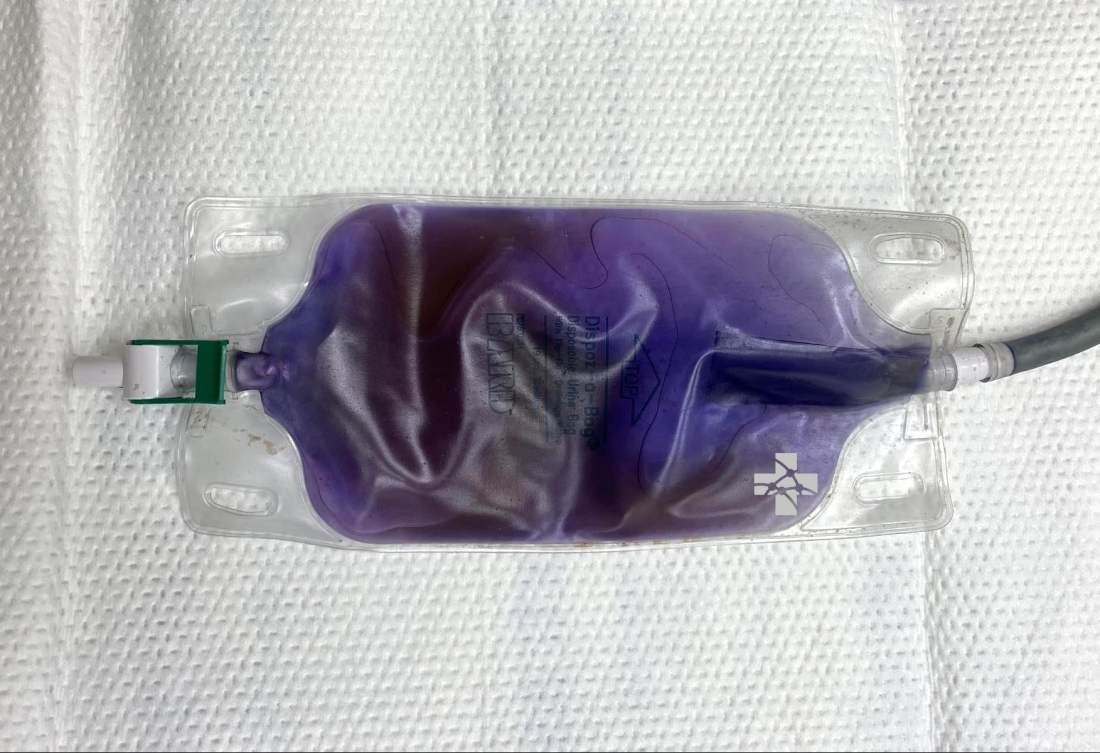 purple urine bag syndrome