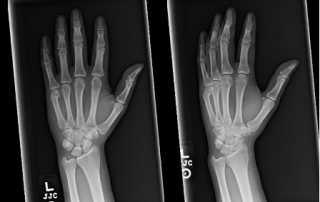 X ray boxer's fracture