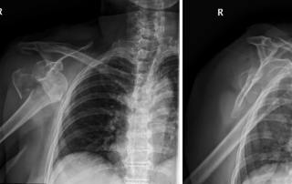 Proximal humerus fracture-dislocations