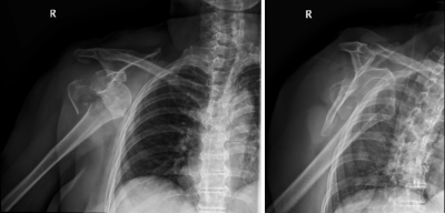 Anterior inferior shoulder dislocation with a fracture of the greater tuberosity of the humerus.