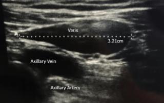 axillary varix