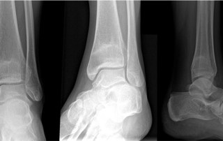 Ankle x-ray film