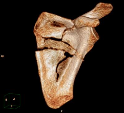 Shoulder CT