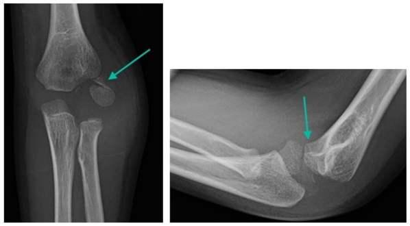 Elbow x-ray