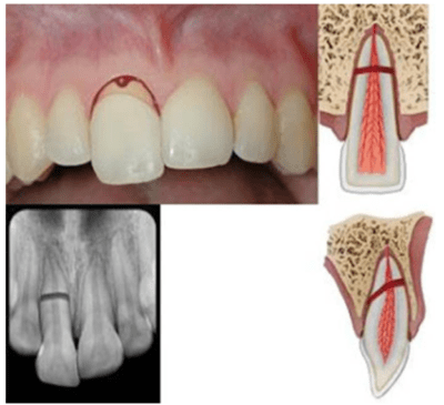 Deeper root fracture and Xray