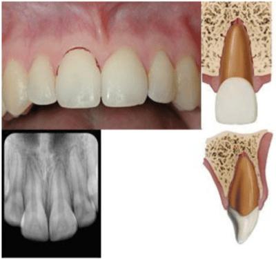 Subluxed teeth