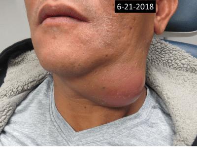 Submandibular abscess photo