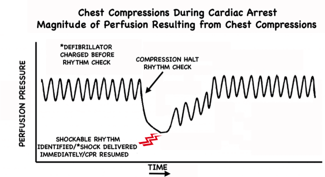 Pre-Charge the Defibrillator CPR Perfusion Pressure 2