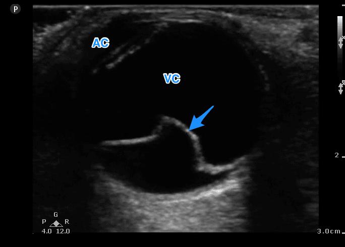 Fig 2 Retinal Detachment Labelled