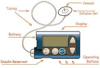 Insulin Pumps: Understanding them and their complications