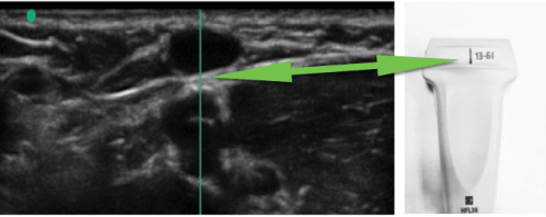 M-mode and ultrasound