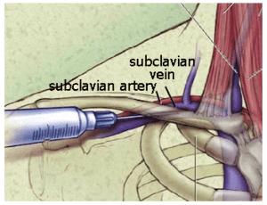 SubclavianV