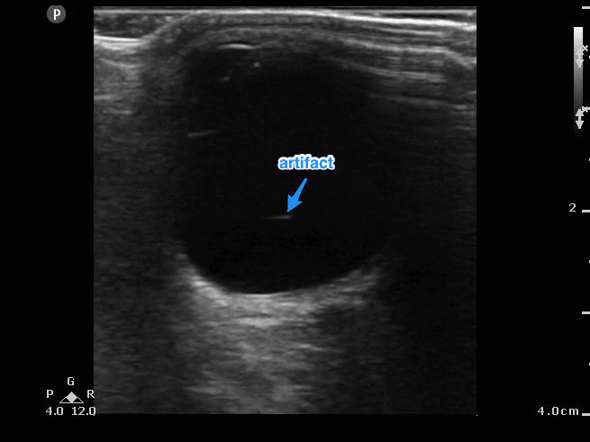 Normal ocular ultrasound with artifact in the vitreous chamber