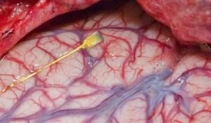 Brain implant of microchip.