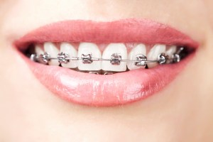 Braces-at-Any-Age