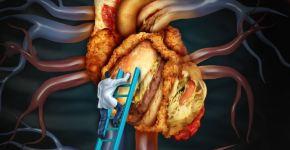 Cómo reducir el colesterol malo con la dieta