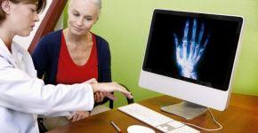 Artrosis y artritis: diferencias
