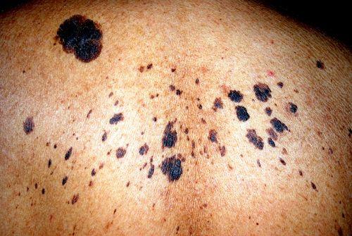 Lesiones precancerosas de la piel - Nevus