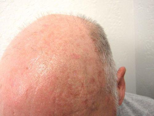 Lesiones precancerosas de la piel - Queratosis actínica