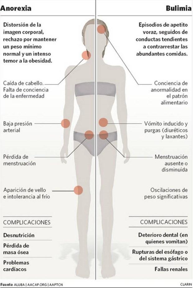 Anorexia y bulimia Diferencias