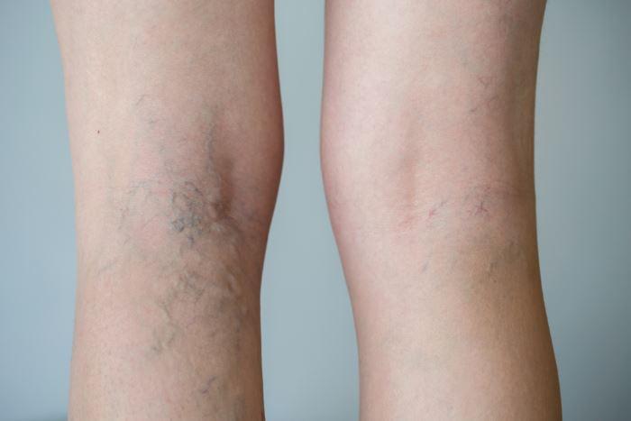 Dolor intenso en las piernas causas