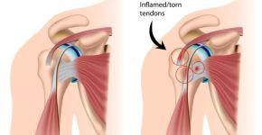 inflamación del tendón
