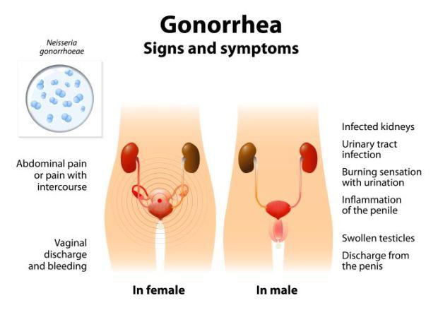 Infecciones de transmisión sexual Gonorrea