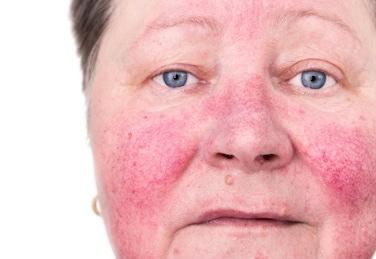 piel rosácea tratamiento