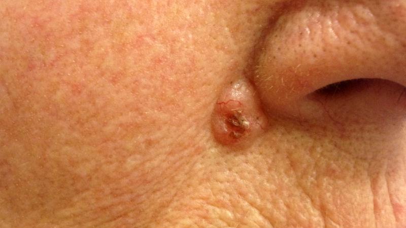 Carcinoma Basocelular (CBC)